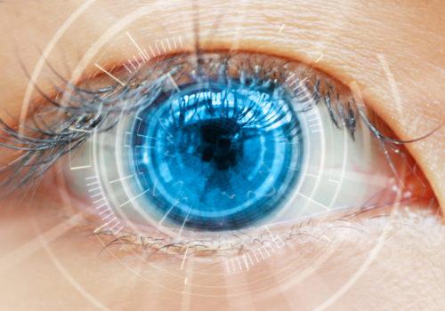 ipvisao_cirurgia_oftalmologica